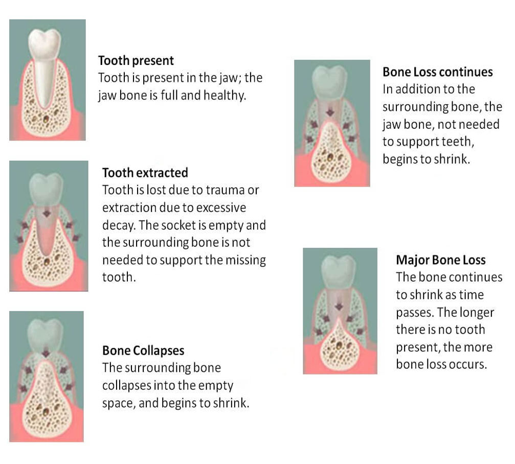 Preserving Tooth Structures and Bone