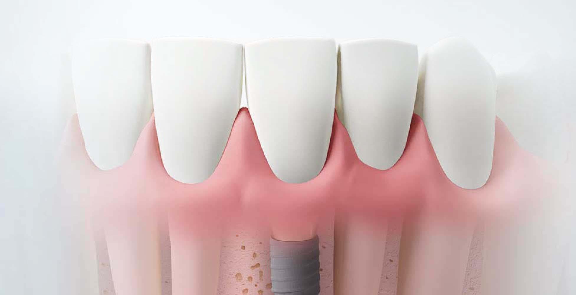 dental implants Upland CA