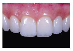 cosmetic dentistry veneers
