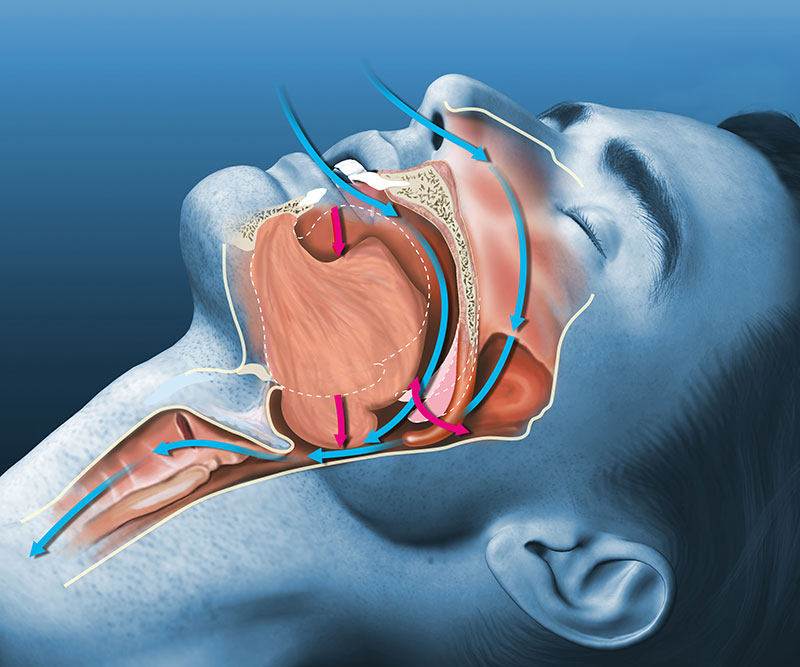 sleep apnea center